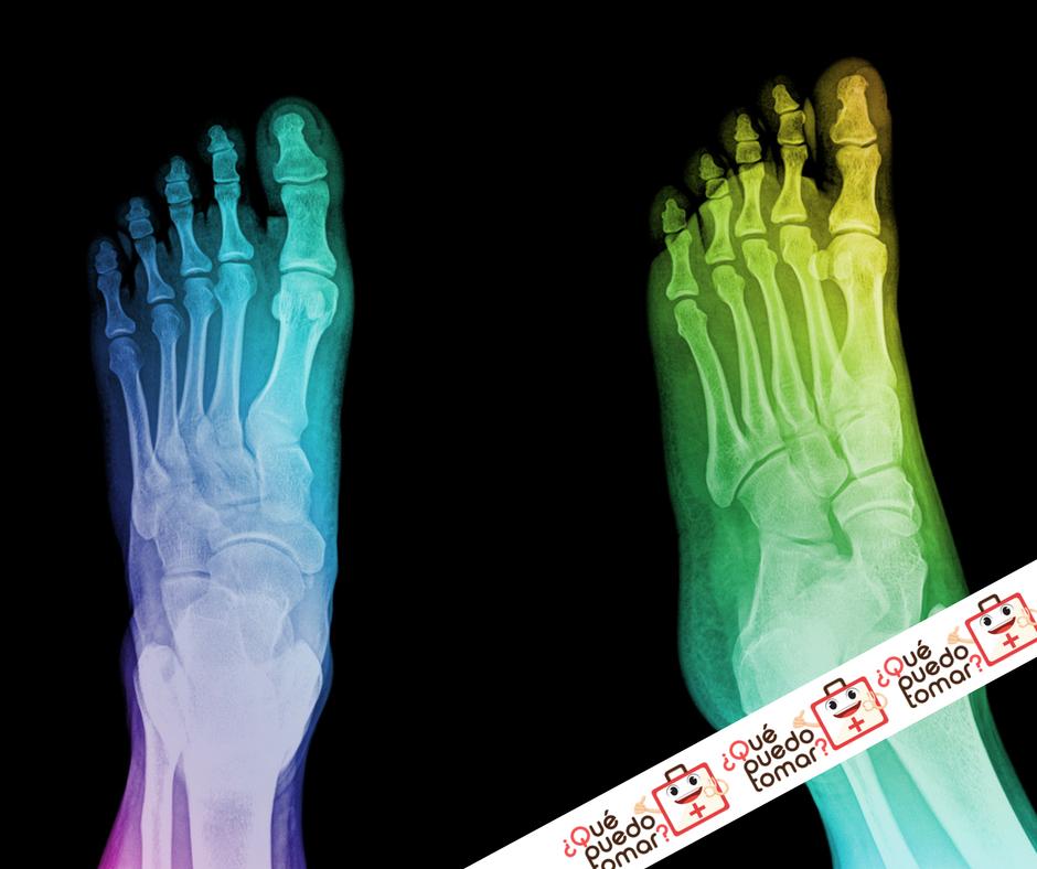 artritis en los pies