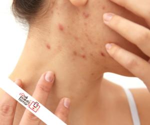 Tratamiento para la dermatitis en la cara